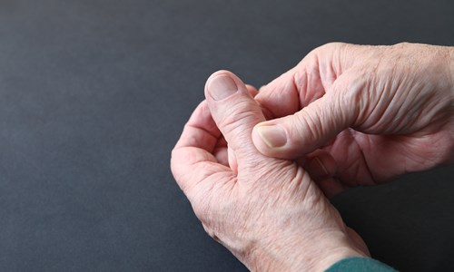 Effective Treatments for Arthritis Pain of the Thumb